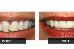 Dental Work / Before & After Photos