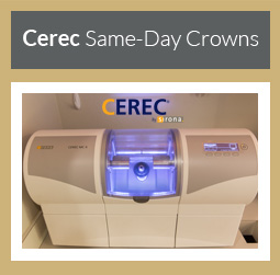 Cerec Same-Day Crowns